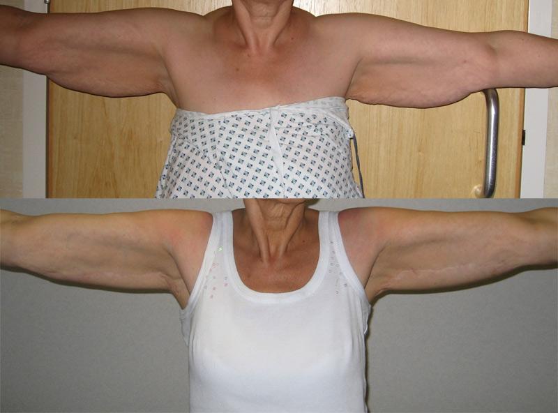 ffe5111725 Brachioplasty - Tighten Uper Arm Skin To Prevent Loose Skin