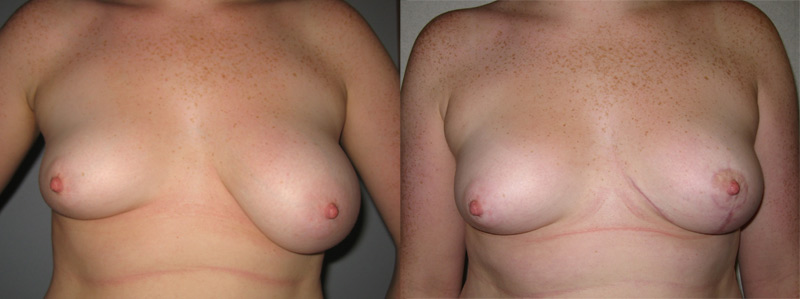 Fucking hot. asimetric tits pictures