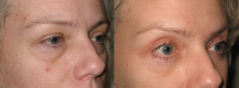 Eyelid Surgery With Stephen McCulley - Costs & Surgery
