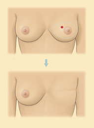 Mastectomy Diagram diagram