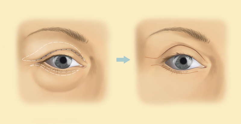 Eyelid surgery with stephen mcculley costs surgery information eyelid surgery blepharoplasty diagram ccuart Gallery