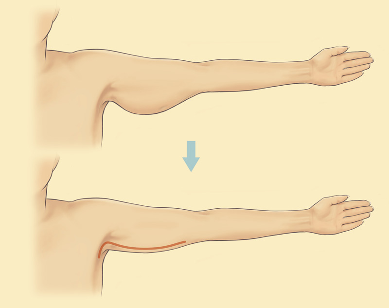 Arm Diagram Skin Wiring Diagram