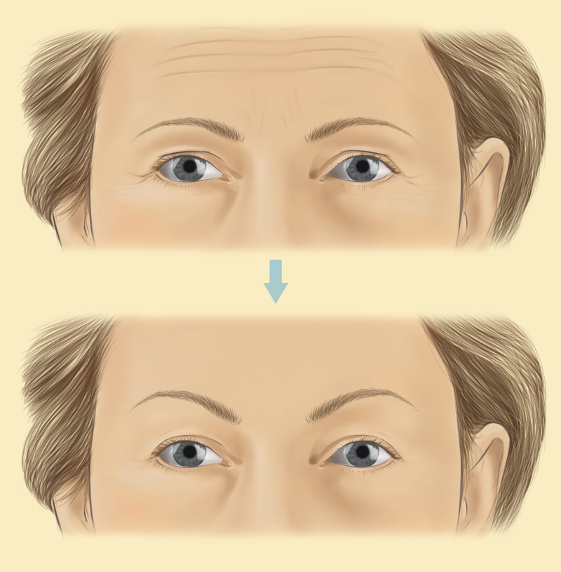 Brow Lift Surgery  U0026 Costs With Stephen Mcculley