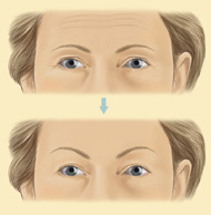 brow lift surgery & costs with stephen mcculley eyebrow lift diagram