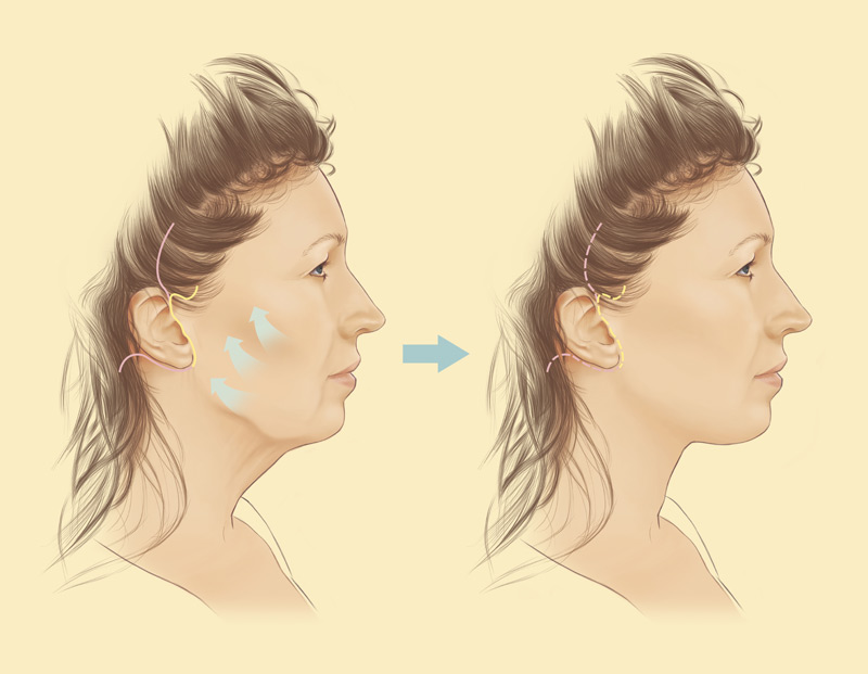 Face and neck lifts with stephen mcculley costs surgery information face and neck lifts diagram ccuart Images