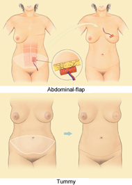 Using the Tummy diagram