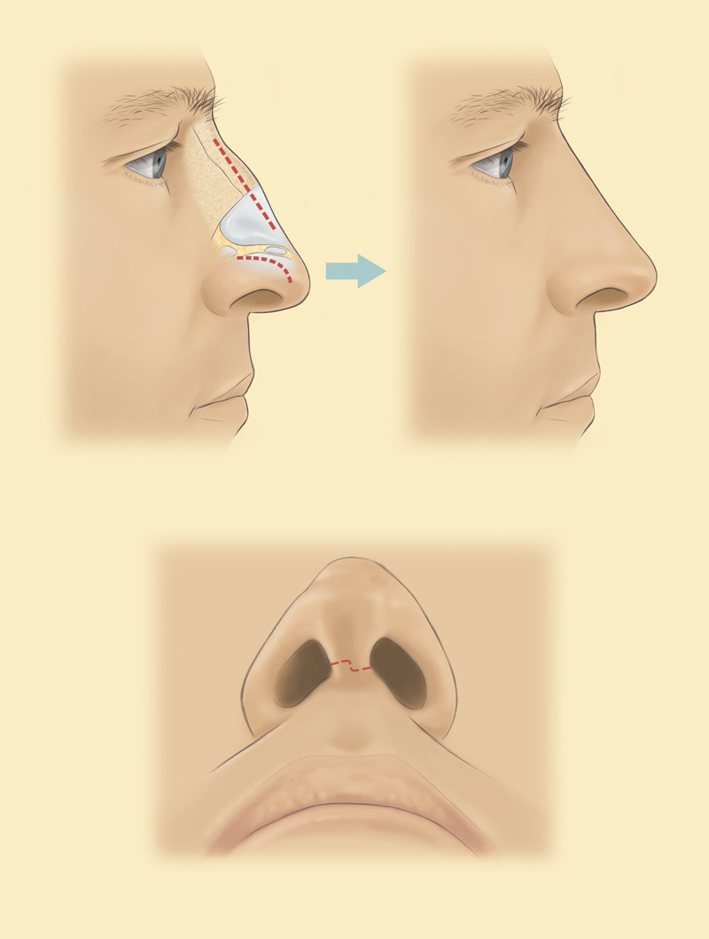 Rhinoplasty nose reshaping fixing with stephen mcculley nose re shaping rhinoplasty diagram pooptronica Images