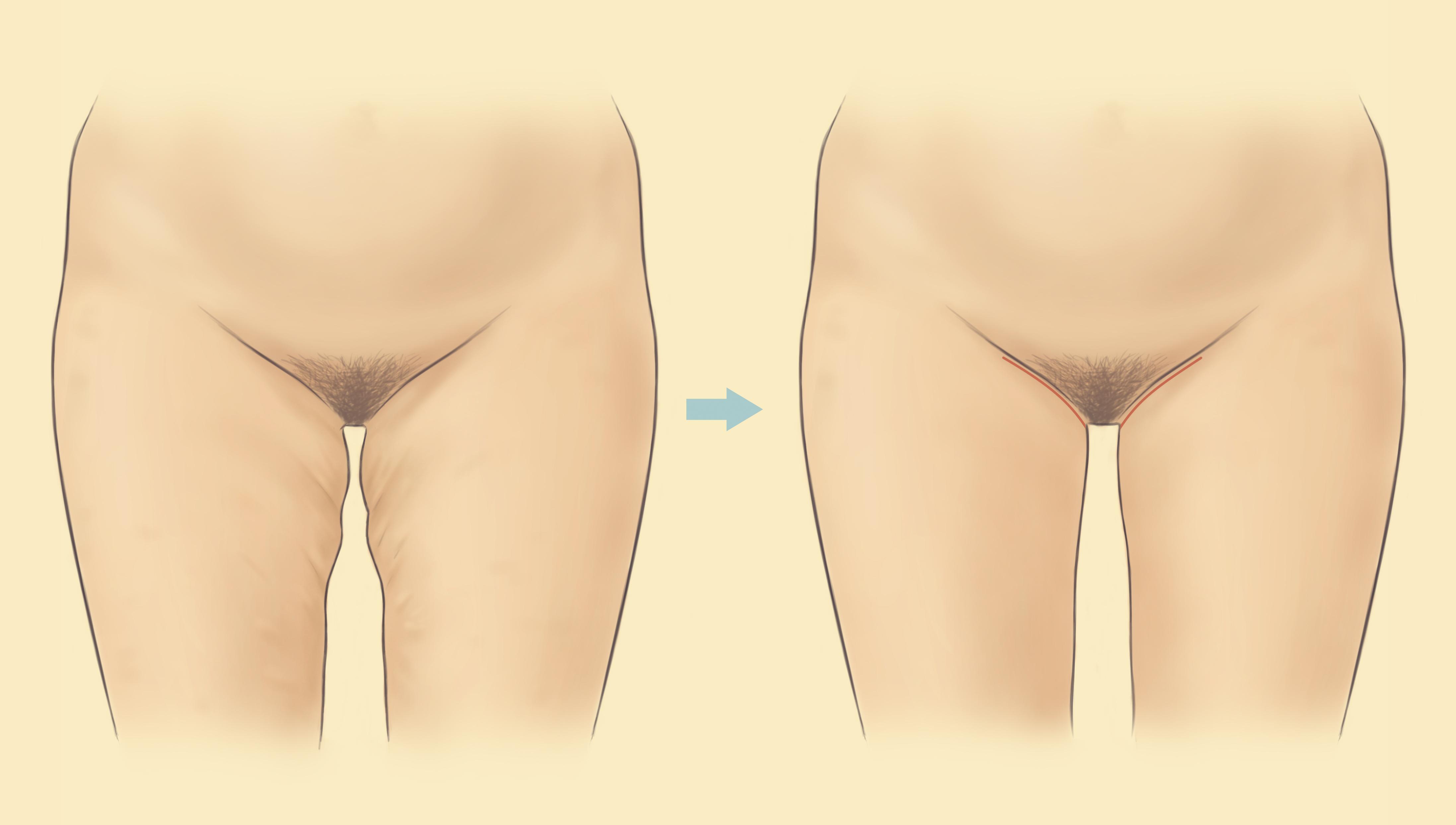 Cinco pierna ejercicios de tonificación para apretar la piel floja después de perder peso