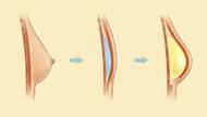 Using Implants diagram