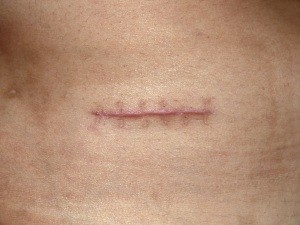 Top Tips For Reducing Scarring After Cosmetic Surgery